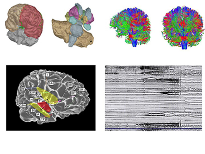 Image: These simulations allow digital testing of new therapeutic strategies. Credit: INS UMR1106 INSERM/AMU