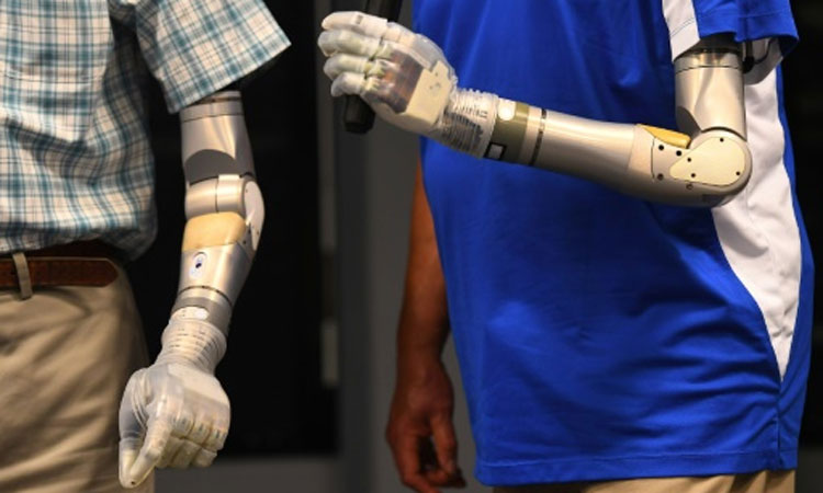 Mobius Bionics Develops Advanced Prosthetic Arms With Pentagon